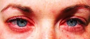A szénanáthás betegek körülbelül 20-30 százalékánál alakul ki a későbiekkben asztma.