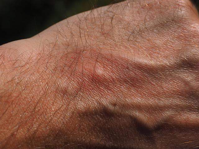 hisztamin allergia ellen