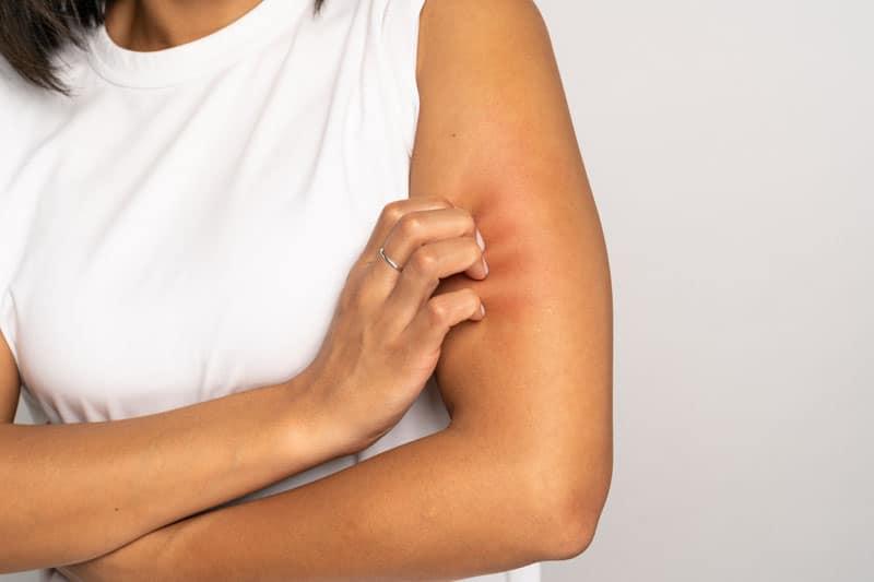 nikkel allergia tünetei